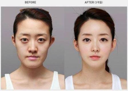 Foto Operasi Plastik Korea 1