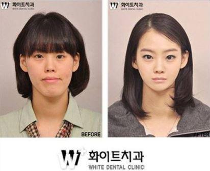 Foto Operasi Plastik Korea 2